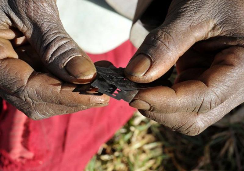 L'ablació és encara una pràctica comuna en països de l'Àfrica subsahariana.